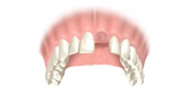 image-implant-une-dent